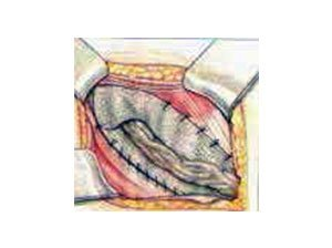 offene Leistenbruchoperation mit Netzverstärkung durch Hautschnitt. (Operation nach Lichtenstein)